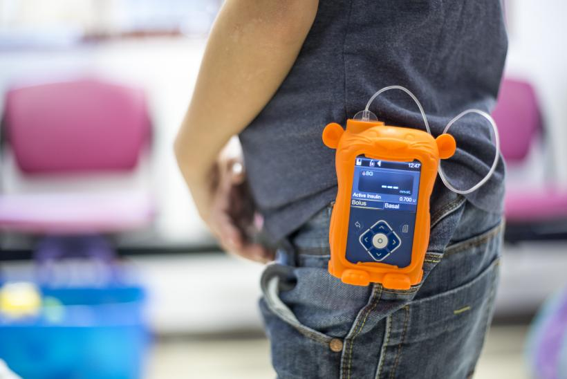 The new Medtronic insulin pump offered at GOSH