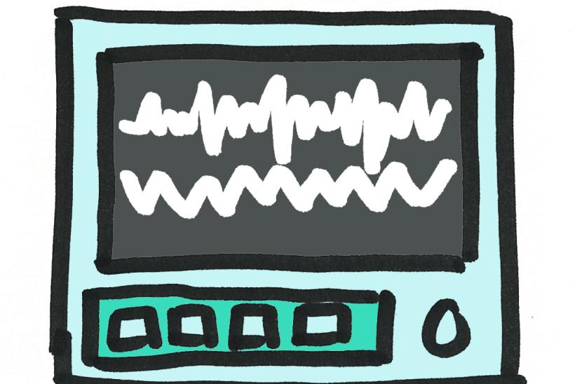 Drawing of a vital signs monitor